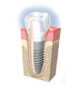 all on 4 implants