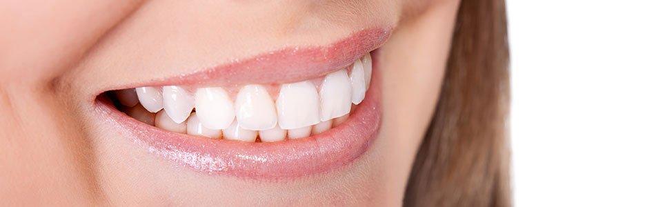 Teeth in a Day: Enjoy Your New Teeth Right Away