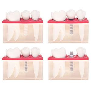 Dental implants queen creek AZ