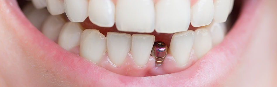 gilbert oral surgery appointment
