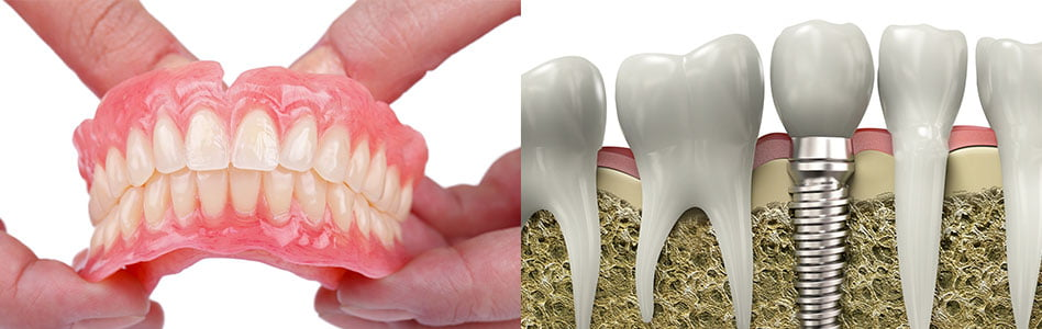 What are the Pros and Cons of Fixed Dentures vs Implants?