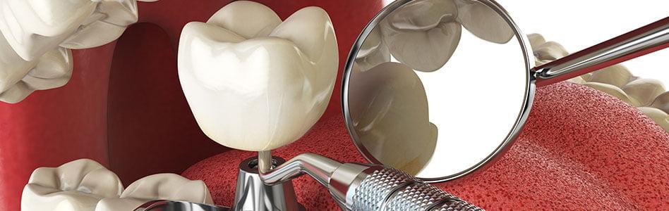What To Expect During Dental Implant Healing  Queen Creek AZ — Gilbert AZ
